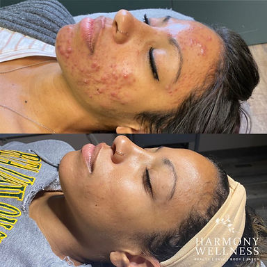 Acne treatment before and after.jpg