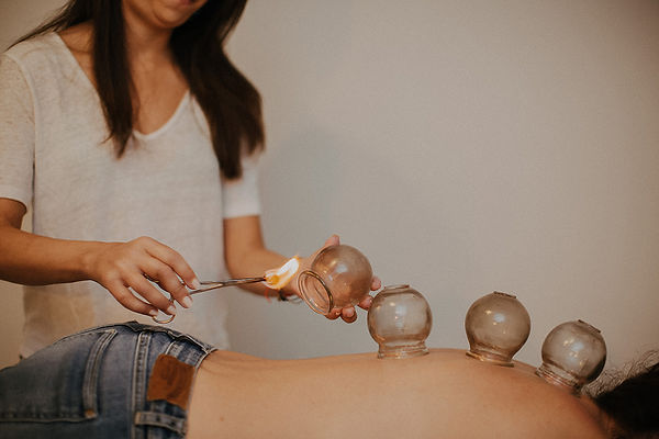 Cupping in Miami Florida. Specializing in pain and injury.