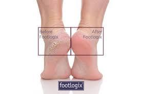 footllogix before after.jpg