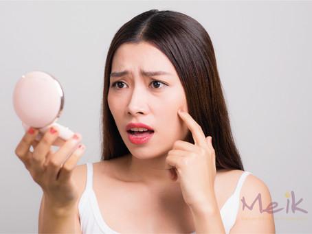 ¿Qué complicaciones se pueden presentar si no usas correctamente tu maquillaje?