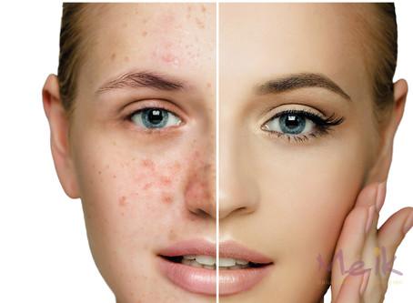 Alergias y maquillaje