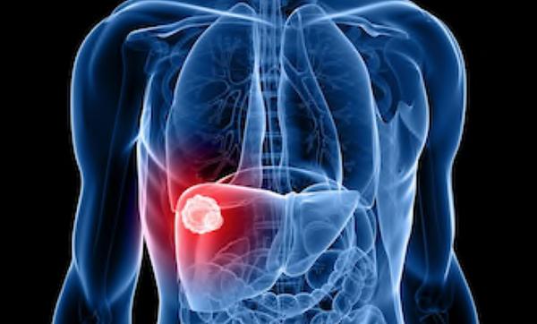 Neoplasia de Fígado