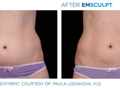 EMSCULPT at Mendis Aesthetics: Where art thou my abs? (Session 1 and 2)