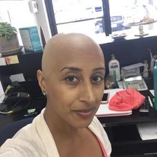 Freshly bald