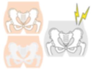 骨盤矯正のイメージ