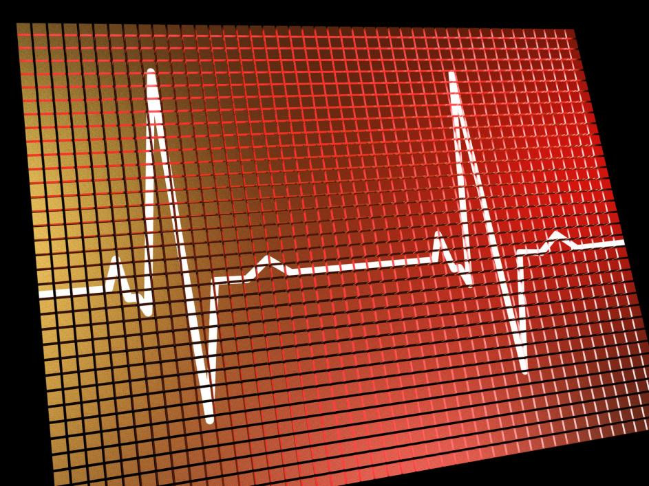 A screen monitoring a patient's heart rate.