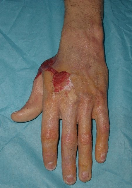 Prosthetic hand with blood