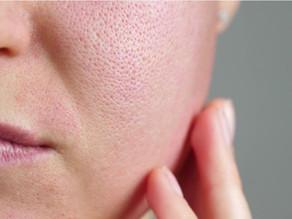 Curiosidades que poucos sabem sobre a questão de saúde e estética dos poros dilatados na pele.