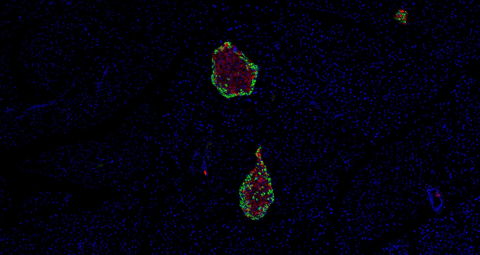 Immunofluorescence [IF] Staining (2-plex:DAPI+2 targets)