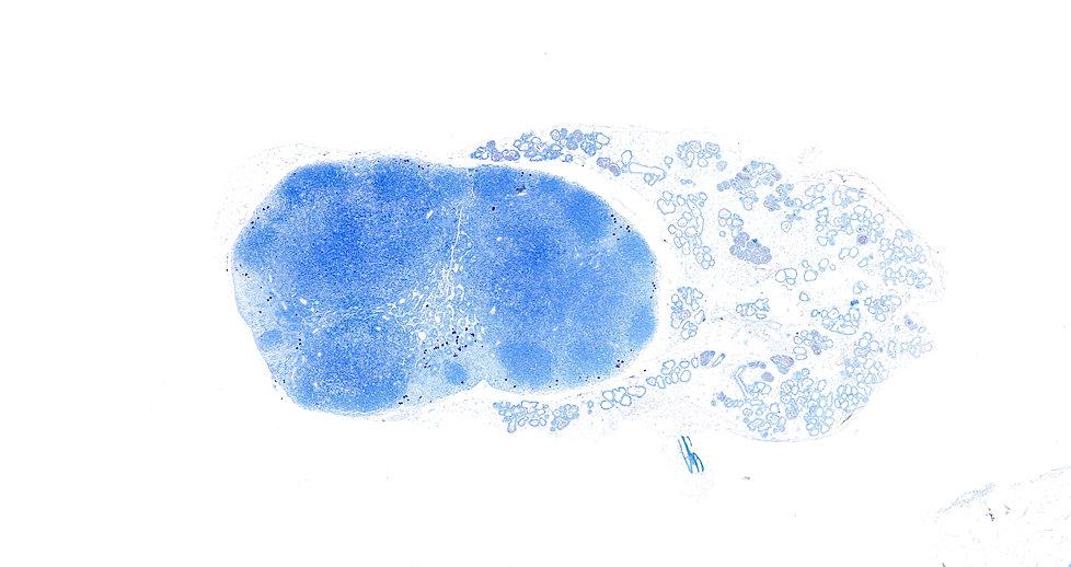 Toluidine blue stain
