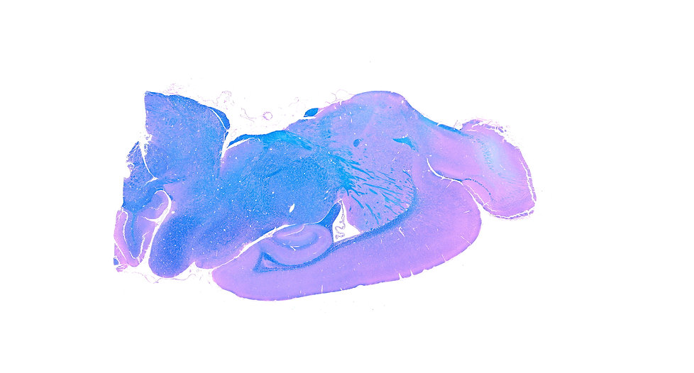 Luxol Fast Blue stain
