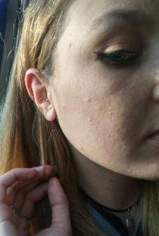 אקנה ורטינואידים: מה קורה למיקרוביומת העור