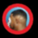 man weave alopecia client