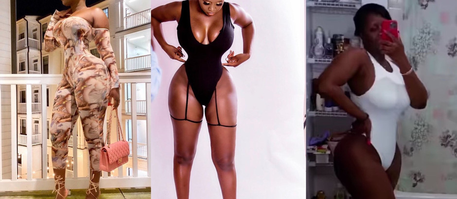 Princess Shyngle feel depressi0n and cries out 0ver heart-wrench!ng hair l0ss