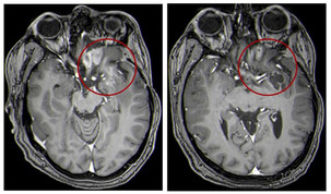 Unusual Treatment shows Promise for Children with Brain Tumors