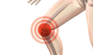 Non-surgical treatment quickly reduces arthritis knee pain and improves function