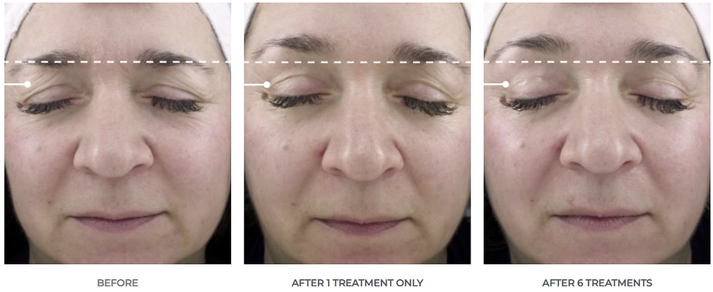 before and after treatment results