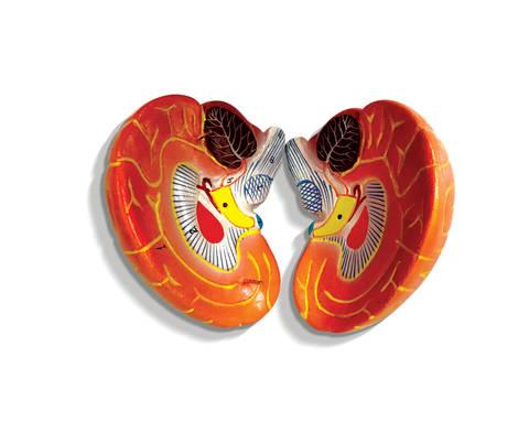 401H - Kidney Model