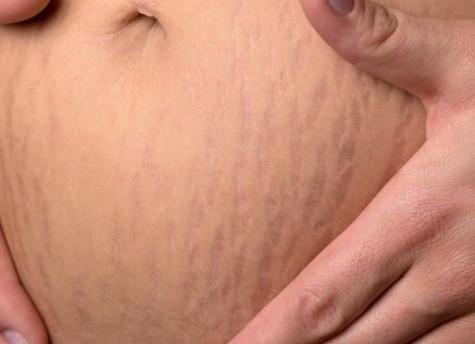 Quelle Est La Meilleure Méthode Pour Mincir Après L'accouchement ?