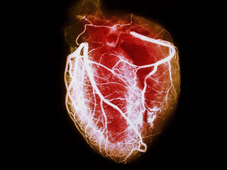 Lifestyle Can Prevent Heart Disease