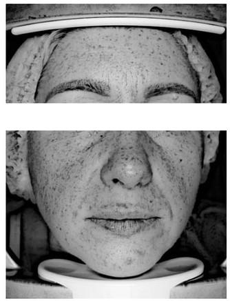 Исследования на базе медицинской косметологии ESTHEL: работа с пигментацией и куперозом
