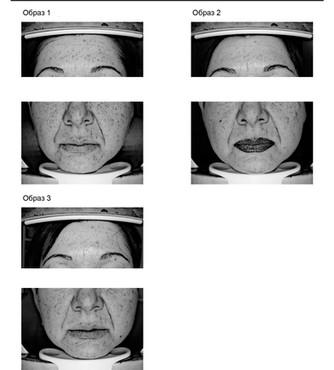 Исследования на базе медицинской косметологии ESTHEL: работа с возрастными изменениями, гиперпигмент