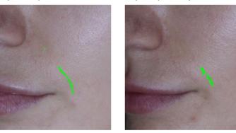 Исследования на базе медицинской косметологии ESTHEL: восстанавливающие процедуры