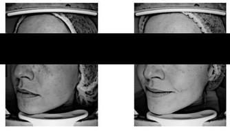 ИССЛЕДОВАНИЯ на базе медицинской косметологииEsthel: восстанавливающие процедуры и домашний уход