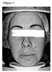 Исследования на базе косметологии ESTHEL: совмещение beauty-программ для кожи и домашнего ухода