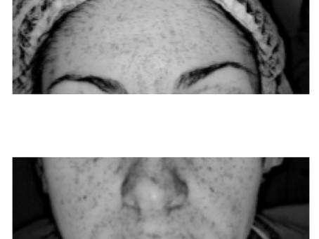 Исследования на базе медицинской косметологии ESTHEL: биоревитализация и мезотерапия