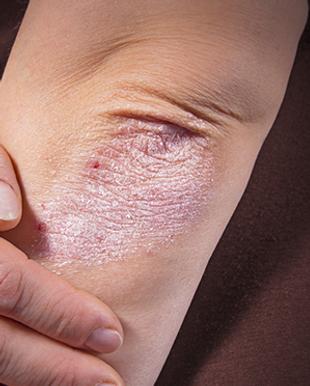kenali-gejala-dan-penyebab-psoriasis-yan