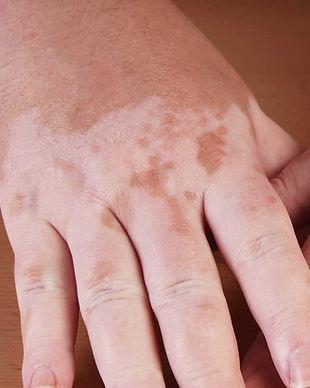 vitiligo01.jpg
