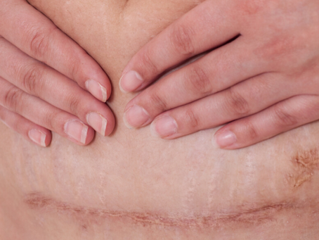 6 WAYS TO EASE TIGHTNESS AROUND YOUR C-SECTION SCAR