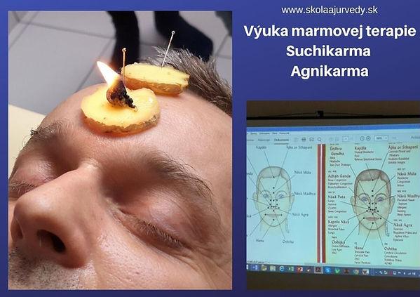 Ajurvédska akupunktúra marmových bodov