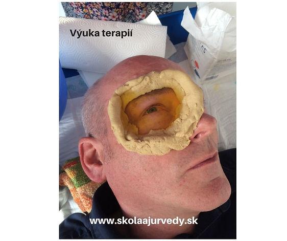 Liečba očí medikovaným olejom