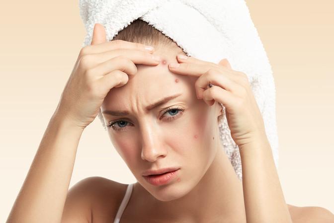 Problematická pleť a akné - liečba podľa ajurvédy