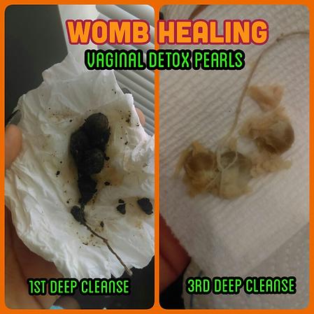 Womb Healing Vaginal Detox Pearls