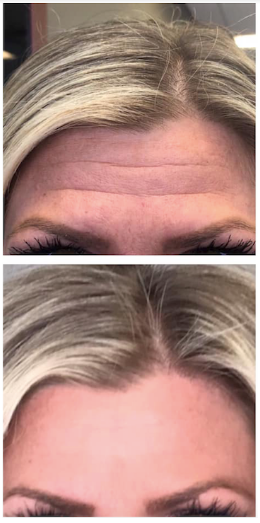 Cosmetic Botox at MQ Enhancements Roches