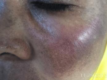Lorsque la peau se révolte