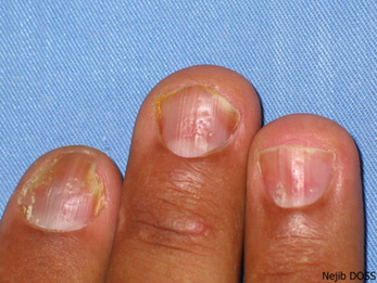 L'Ongle psoriasique