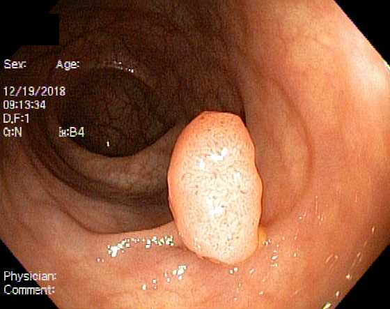 Can you explain my colonoscopy results?