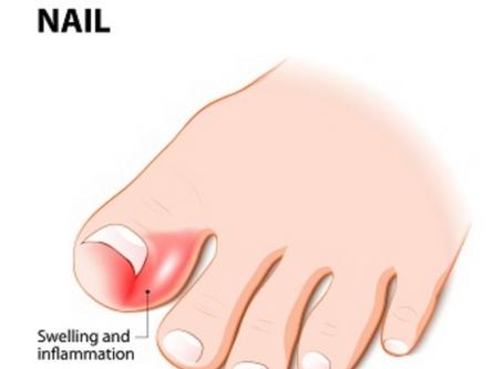 Ingrowing Toe Nails / Self Care
