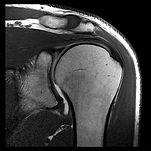 MRI Shoulder.jpg