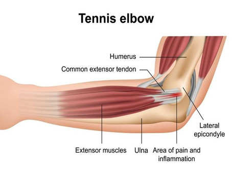 Epicondylitis of The Elbow