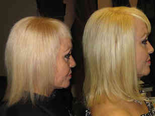 Damage-caused-by-bleaching-restore-with-extensions