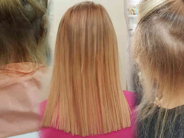 Before-extensions-during-and-growth-after
