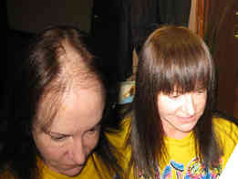 Balding-covered-with-hair-extensions.jpg