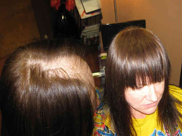 Using-hair-extensions-to-cover-bald-spot