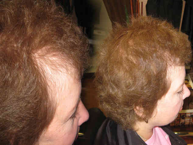 Post-chemo-hair-extensions_1.jpg