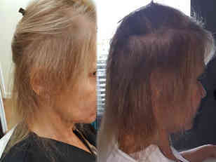 Showing-healthy-hair-growth-after-first-set